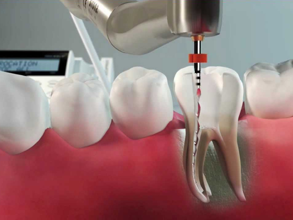 MDS College Admission in Kerala | Dental Schools Course