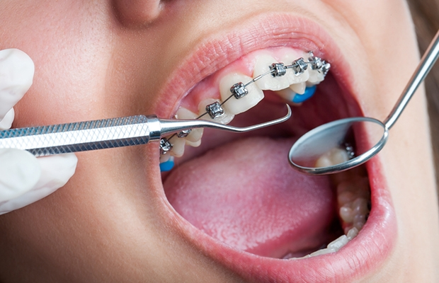 MDS Admission in Kerala | MDS Colleges | PG Dental School in Kerala